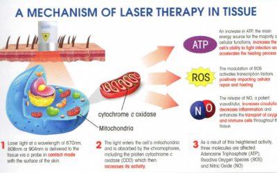 آیا لیزر درمانی روش ایمنی است؟