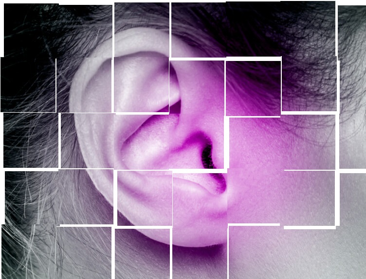 اثرات لیزردرمانی در وزوز گوش (۲)